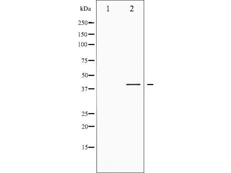 Western Blotting (WB) image for anti-cAMP Responsive Element Binding Protein 1 (CREB1) (pSer142) antibody (ABIN6254981)