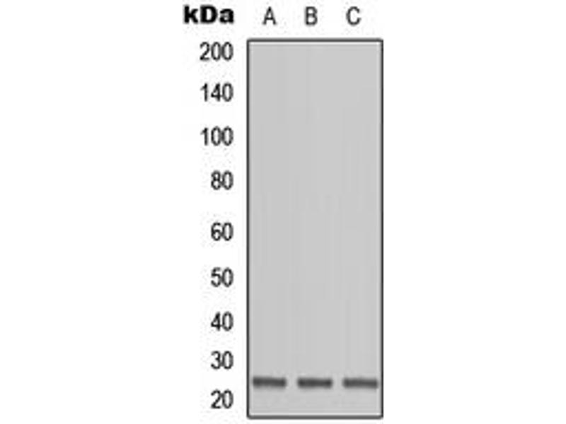 Western Blotting (WB) image for anti-Ornithine Decarboxylase Antizyme 1 (OAZ1) (N-Term) antibody (ABIN2707668)