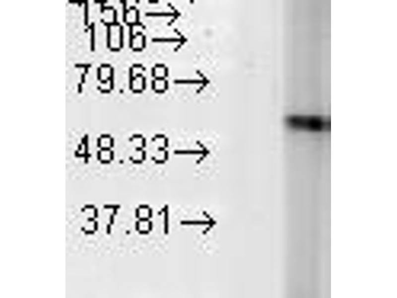 Western Blotting (WB) image for anti-Heat Shock 60kDa Protein 1 (Chaperonin) (HSPD1) antibody (ABIN361786)