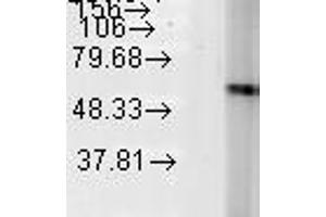 Western Blotting (WB) image for anti-Heat Shock 60kDa Protein 1 (Chaperonin) (HSPD1) antibody (ABIN361786)