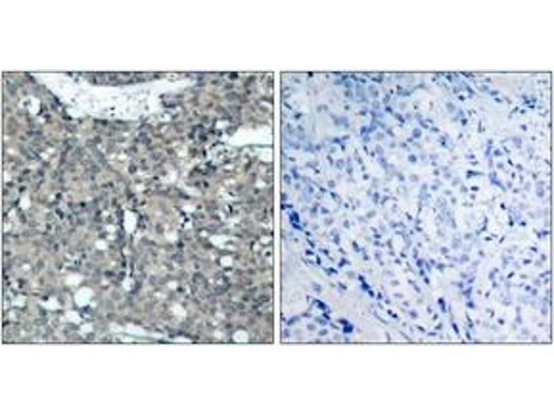 Immunohistochemistry (IHC) image for anti-Paxillin antibody (PXN) (ABIN1532978)