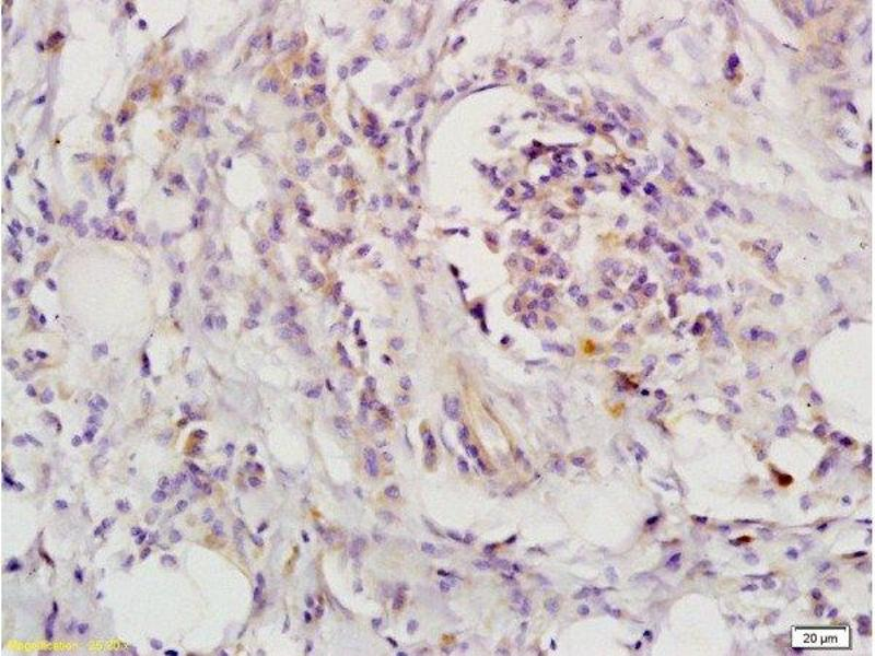 Immunohistochemistry (Paraffin-embedded Sections) (IHC (p)) image for anti-LIFR Antikörper (Leukemia Inhibitory Factor Receptor alpha) (AA 500-550) (ABIN686827)