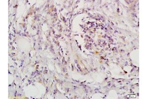 Immunohistochemistry (Paraffin-embedded Sections) (IHC (p)) image for anti-Leukemia Inhibitory Factor Receptor alpha (LIFR) (AA 500-550) antibody (ABIN686827)