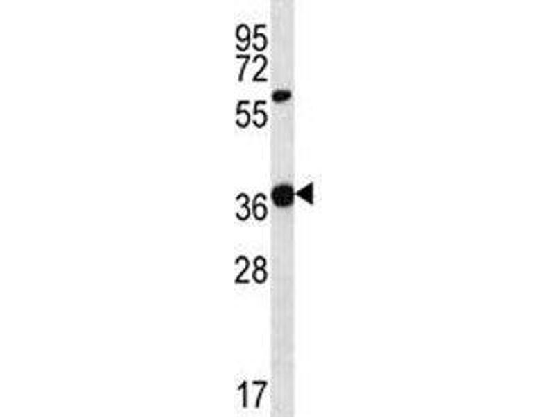 Western Blotting (WB) image for anti-WNT16 antibody (Wingless-Type MMTV Integration Site Family, Member 16) (AA 236-265) (ABIN3029626)