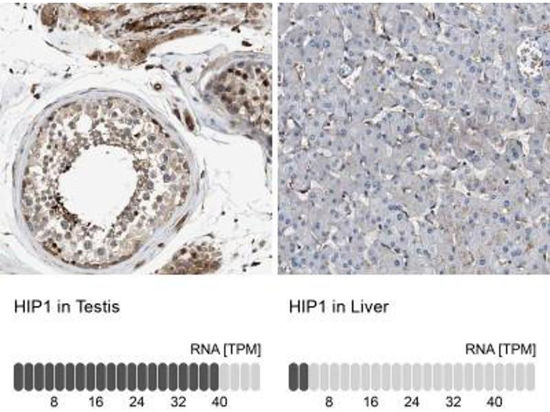 Immunohistochemistry (Paraffin-embedded Sections) (IHC (p)) image for anti-Huntingtin Interacting Protein 1 (HIP1) antibody (ABIN4317501)