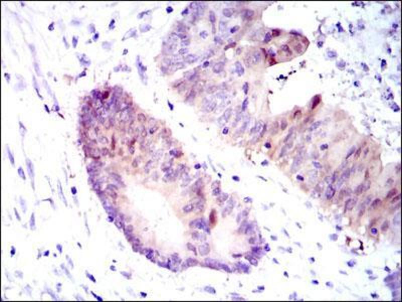 Immunohistochemistry (IHC) image for anti-Argininosuccinate Synthase 1 (ASS1) antibody (ABIN4880550)