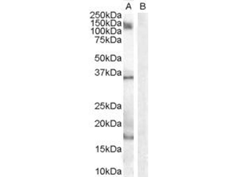 image for anti-Allograft Inflammatory Factor 1 (AIF1) (Internal Region) antibody (ABIN185597)