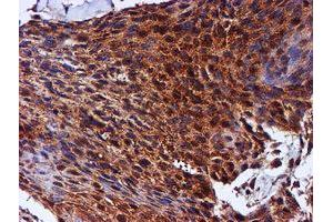 Image no. 11 for anti-Chromosome 1 Open Reading Frame 50 (C1ORF50) antibody (ABIN1497033)