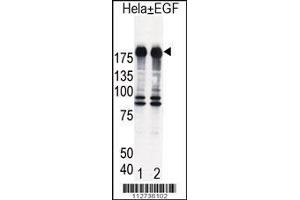 Western Blotting (WB) image for anti-EGFR antibody (Epidermal Growth Factor Receptor) (AA 1048-1077) (ABIN391943)