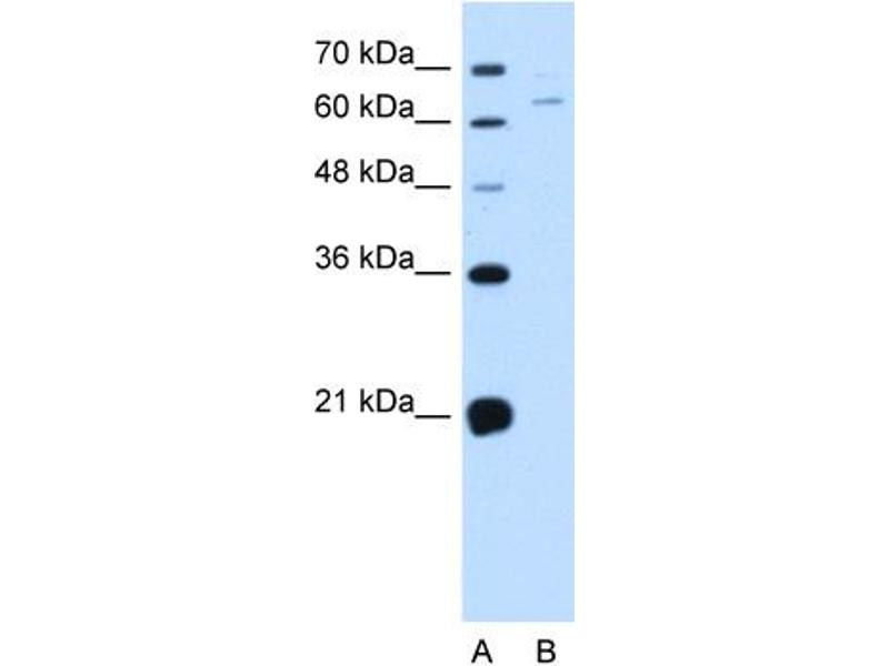 Western Blotting (WB) image for anti-NADPH Oxidase 1 (NOX1) (C-Term) antibody (ABIN2782754)