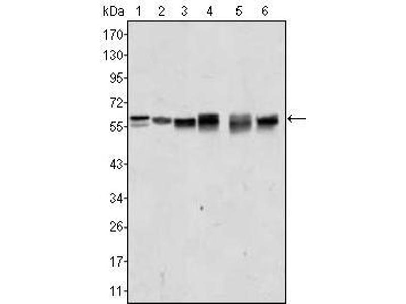 Western Blotting (WB) image for anti-V-Akt Murine Thymoma Viral Oncogene Homolog 2 (AKT2) antibody (ABIN2869473)