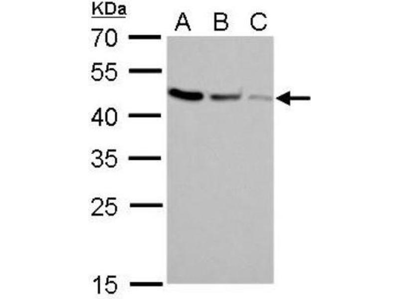 Western Blotting (WB) image for anti-Craniofacial Development Protein 1 (CFDP1) (Center) Antikörper (ABIN4265002)