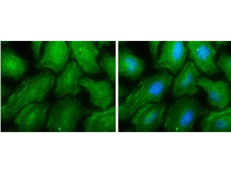 Immunofluorescence (fixed cells) (IF/ICC) image for anti-Non-Muscle Myosin Heavy Polypeptide 9 (MYH9) (N-Term) antibody (ABIN441725)