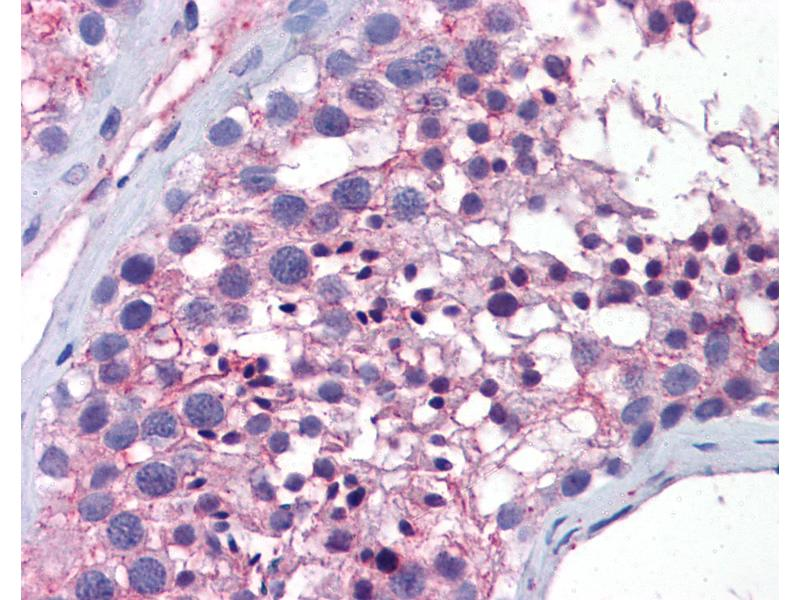 Immunohistochemistry (IHC) image for anti-Wingless-Type MMTV Integration Site Family, Member 10A (WNT10A) (AA 101-150) antibody (ABIN769023)