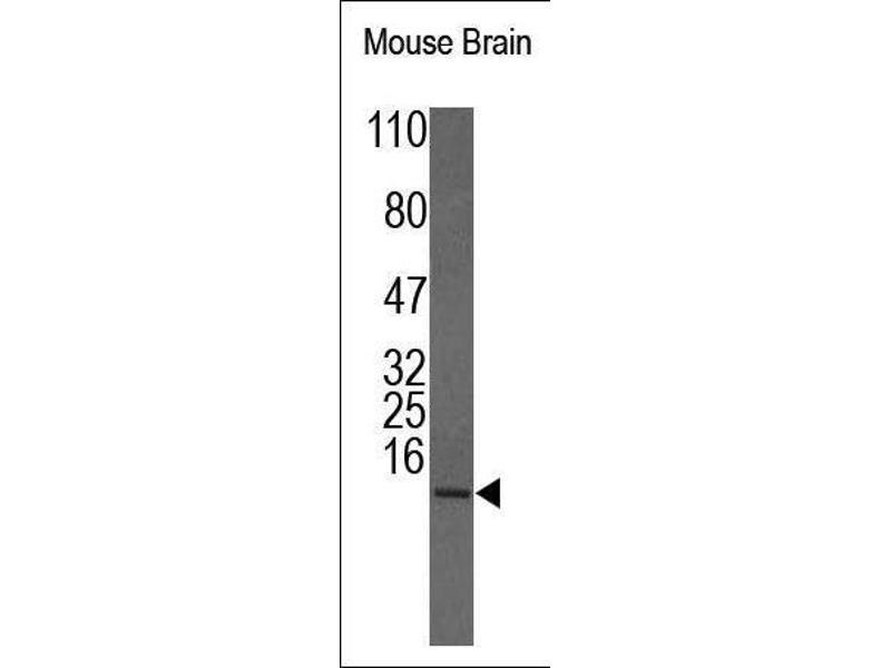 Western Blotting (WB) image for anti-Insulin-Like Growth Factor 1 (IGF1) (N-Term) antibody (ABIN1586056)