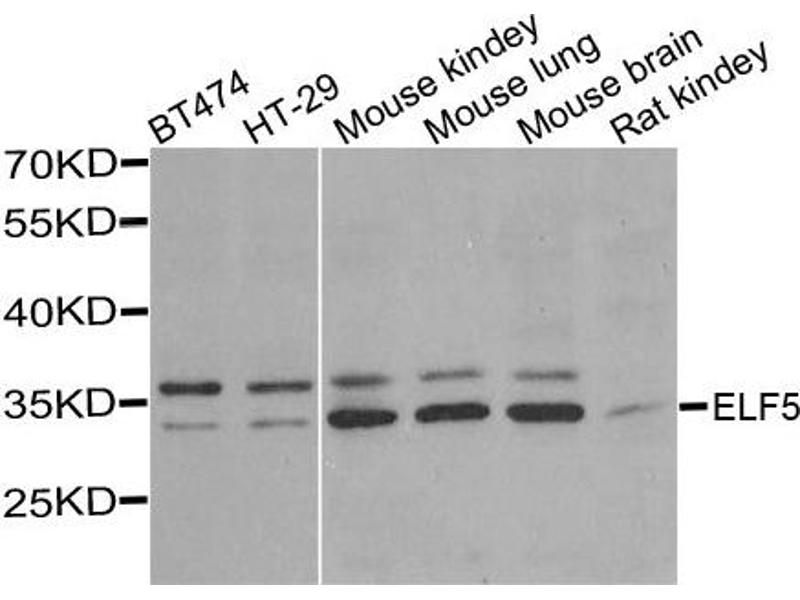 Image no. 1 for anti-E74-Like Factor 5 (Ets Domain Transcription Factor) (ELF5) antibody (ABIN2562402)
