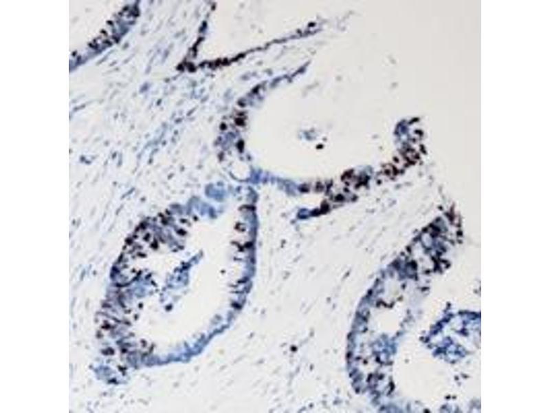 Immunohistochemistry (IHC) image for anti-Mitogen-Activated Protein Kinase 8 (MAPK8) (full length) antibody (ABIN6043666)