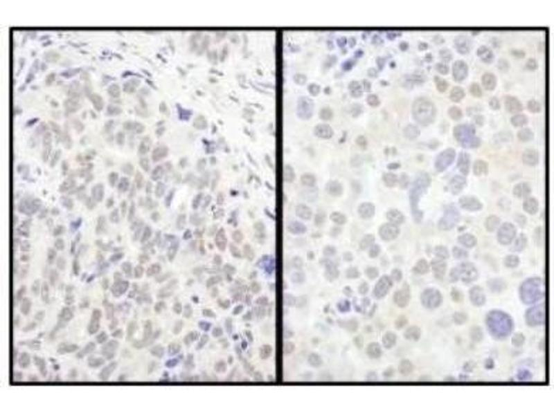 Immunohistochemistry (Paraffin-embedded Sections) (IHC (p)) image for anti-Forkhead Box O3 (FOXO3) (C-Term) antibody (ABIN152045)