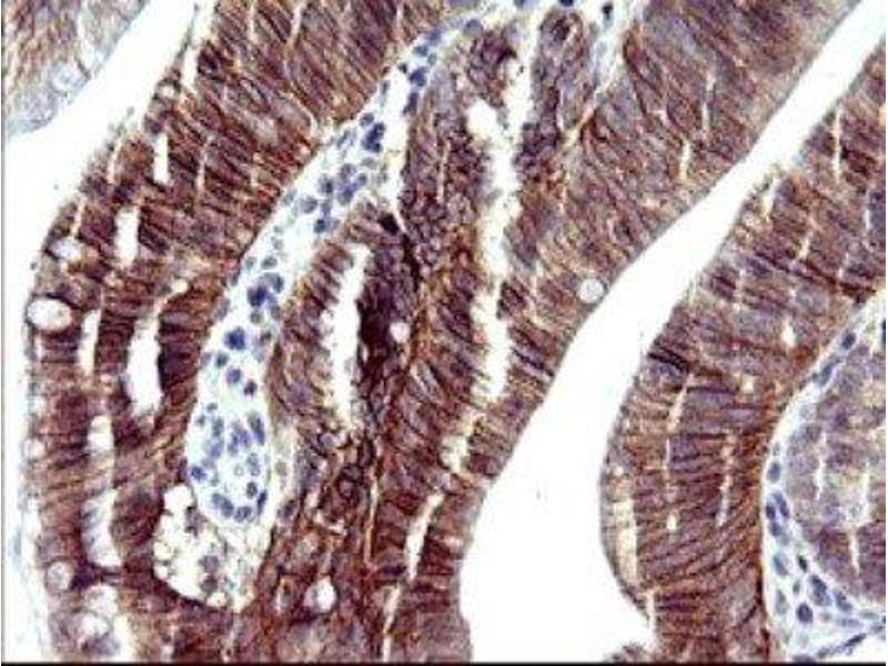 Immunohistochemistry (IHC) image for anti-Ras Association (RalGDS/AF-6) Domain Family (N-terminal) Member 8 (RASSF8) 抗体 (ABIN4349462)