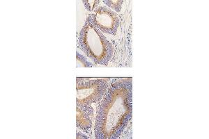 Image no. 2 for anti-Growth Differentiation Factor 11 (GDF11) (N-Term) antibody (ABIN357455)