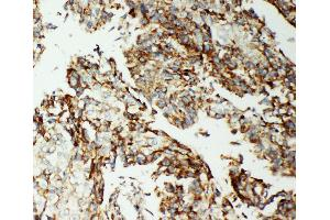 Immunohistochemistry (IHC) image for anti-AIFM1 antibody (Apoptosis-Inducing Factor, Mitochondrion-Associated, 1) (AA 596-613) (ABIN3044471)