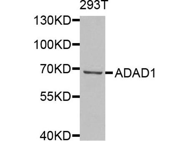 Image no. 1 for anti-Adenosine Deaminase Domain Containing 1 (Testis-Specific) (ADAD1) antibody (ABIN2560936)
