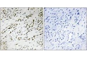 Image no. 2 for anti-threonine Synthase-Like 2 (S. Cerevisiae) (THNSL2) (AA 811-860) antibody (ABIN1534142)