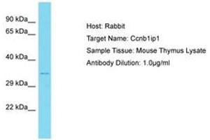 Image no. 1 for anti-Cyclin B1 Interacting Protein 1 (CCNB1IP1) (N-Term) antibody (ABIN6750400)