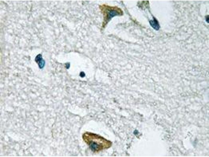 Immunohistochemistry (Paraffin-embedded Sections) (IHC (p)) image for anti-Tyrosine-Protein Kinase JAK3 (JAK3) antibody (ABIN498150)