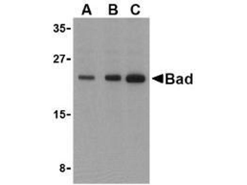 Western Blotting (WB) image for anti-BAD antibody (BCL2-Associated Agonist of Cell Death) (ABIN499399)