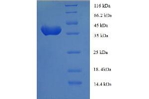 Image no. 1 for Anaphase Promoting Complex Subunit 15 (ANAPC15) (AA 1-121), (full length) protein (GST tag) (ABIN5709159)