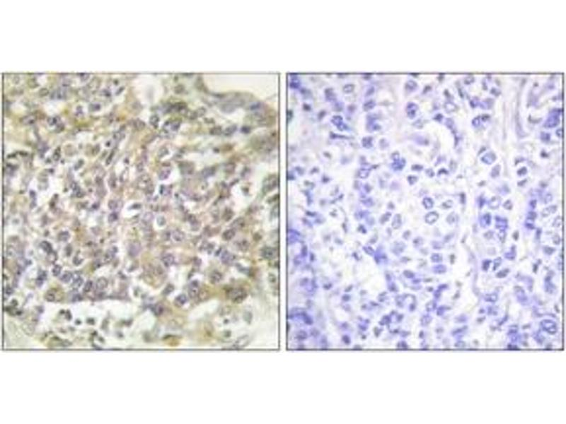 Immunohistochemistry (IHC) image for anti-SHC (Src Homology 2 Domain Containing) Transforming Protein 1 (SHC1) (AA 315-364) antibody (ABIN1532209)