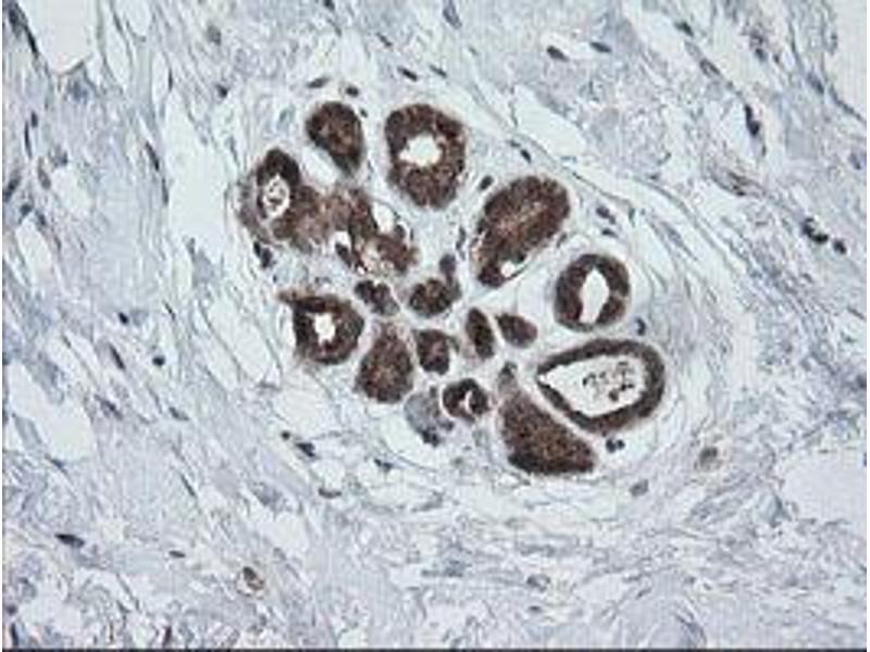 image for anti-Phosphoinositide-3-Kinase, Catalytic, gamma Polypeptide (PIK3CG) antibody (ABIN1500207)