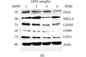 Image no. 3 for anti-5'-Nucleotidase, Ecto (CD73) (NT5E) (Center) antibody (ABIN2854948)