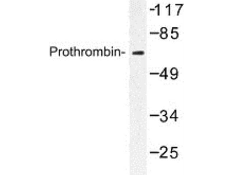 Western Blotting (WB) image for anti-Prothrombin antibody (Coagulation Factor II (thrombin)) (ABIN314761)