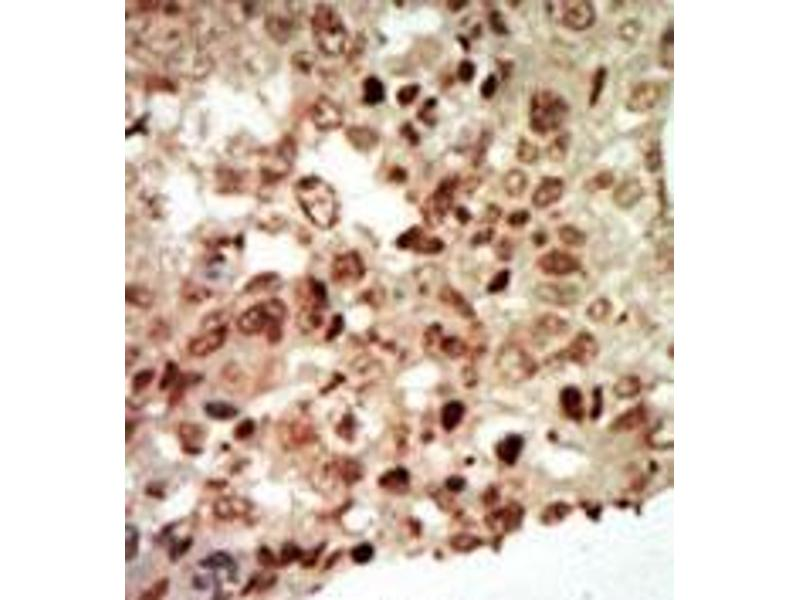 Immunohistochemistry (Paraffin-embedded Sections) (IHC (p)) image for anti-MAPK11 antibody (Mitogen-Activated Protein Kinase 11) (Middle Region) (ABIN359418)