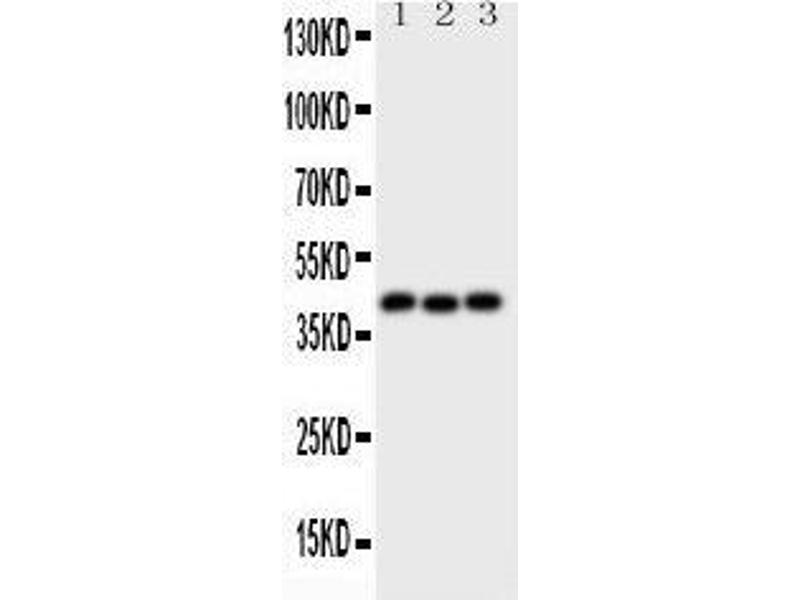 Western Blotting (WB) image for anti-Wingless-Type MMTV Integration Site Family, Member 5A (WNT5A) (AA 184-303) antibody (ABIN3043962)