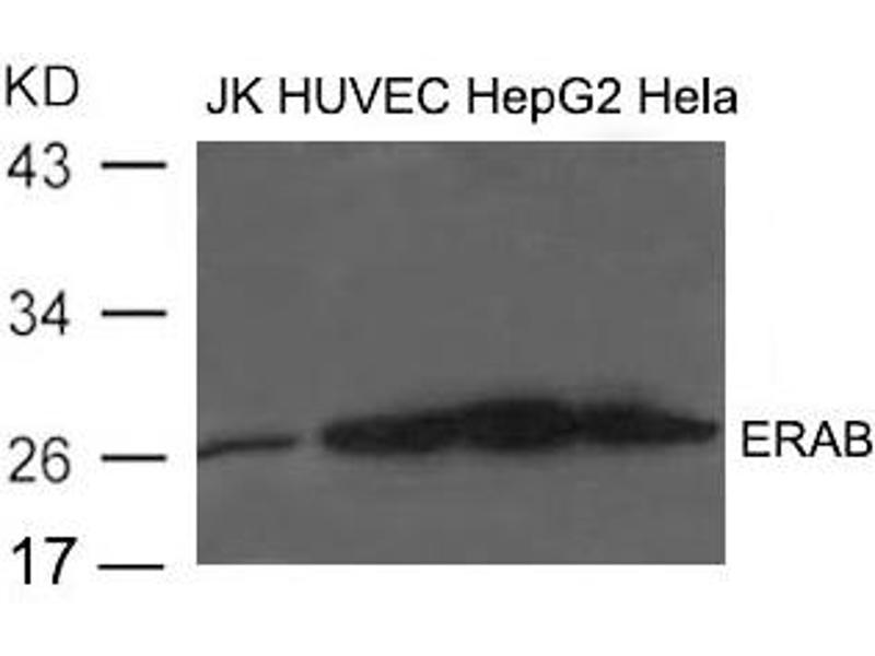 Image no. 1 for anti-Hydroxysteroid (17-Beta) Dehydrogenase 10 (HSD17B10) (AA 253-527) antibody (ABIN6267742)
