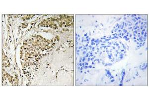 Image no. 1 for anti-Nucleolar Protein with MIF4G Domain 1 (NOM1) (C-Term) antibody (ABIN1851742)