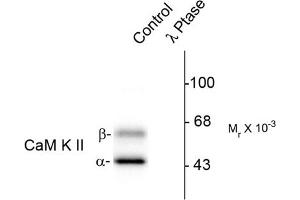 image for anti-CAMK2A antibody (Calcium/calmodulin-Dependent Protein Kinase II alpha) (pThr286) (ABIN372889)