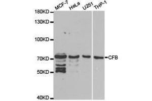 Western Blotting (WB) image for anti-Complement Factor B (CFB) antibody (ABIN1871801)