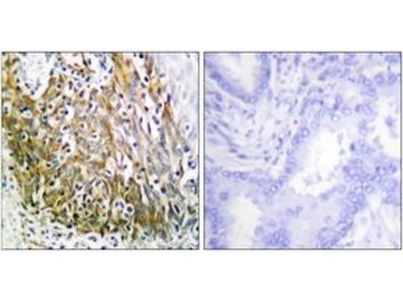 Immunohistochemistry (IHC) image for anti-Matrix Metallopeptidase 10 (Stromelysin 2) (MMP10) (AA 361-410) antibody (ABIN1533343)