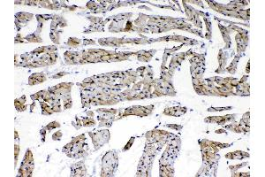 Image no. 4 for anti-Laminin, gamma 1 (LAMC1) (all Isoforms) antibody (ABIN5692889)