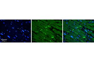 Immunohistochemistry (IHC) image for anti-Solute Carrier Family 40 (Iron-Regulated Transporter), Member 1 (SLC40A1) (Middle Region) antibody (ABIN2781643)