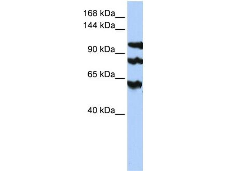 Western Blotting (WB) image for anti-Protein Phosphatase 1, Regulatory Subunit 13B (PPP1R13B) (Middle Region) antibody (ABIN2783179)