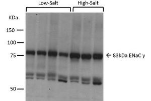 Image no. 3 for anti-Sodium Channel, Nonvoltage-Gated 1, gamma (SCNN1G) (AA 629-650) antibody (Alkaline Phosphatase (AP)) (ABIN2486425)
