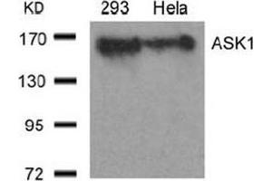 Image no. 3 for anti-Mitogen-Activated Protein Kinase Kinase Kinase 5 (MAP3K5) (Ser966) antibody (ABIN197326)