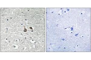 Immunohistochemistry (IHC) image for anti-IRAK1 antibody (Interleukin-1 Receptor-Associated Kinase 1) (pSer376) (ABIN1532050)