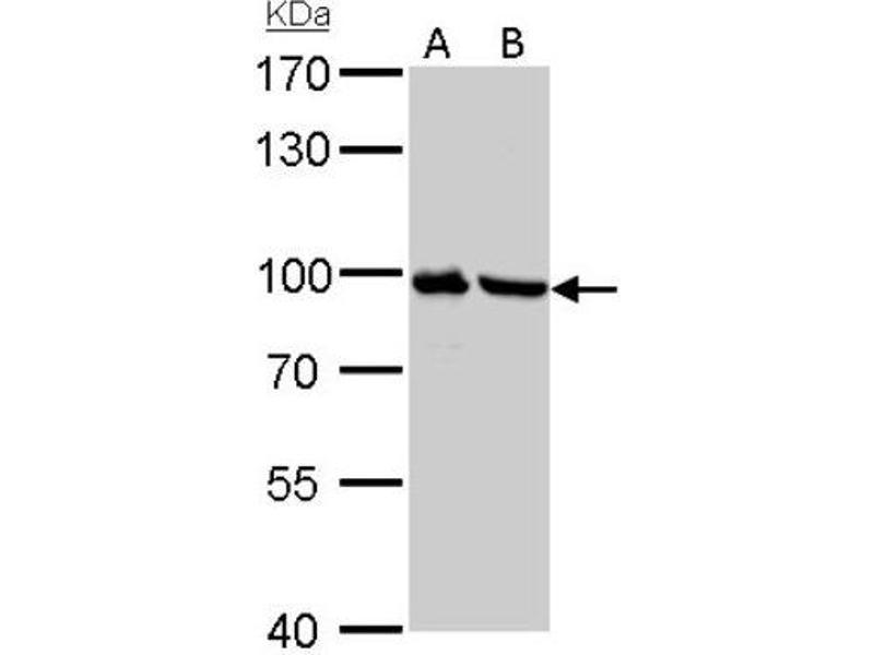 Western Blotting (WB) image for anti-PLG antibody (Plasminogen) (Center) (ABIN4346087)