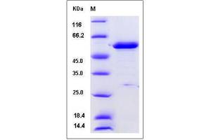 Image no. 1 for phosphoglycerate Dehydrogenase (PHGDH) (AA 1-533), (Mature) protein (His tag) (ABIN2005507)